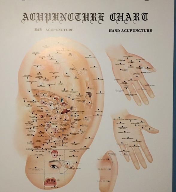 auricular-chart